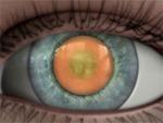 Description: Nuclear cataract