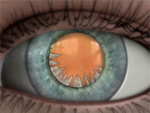 Description: Cortical cataract