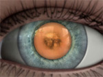 Description: Posterior capsular cataract
