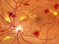 Description: Non-proliferative diabetic retinopathy