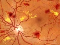 Description: Non-proliferative diabetic retinopathy