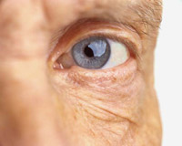 Description: The majority of people over the age of 65 experience some symptoms of dry eyes.