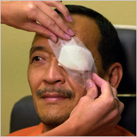 Description: Glaucoma is the leading cause of blindless among Hispanics.